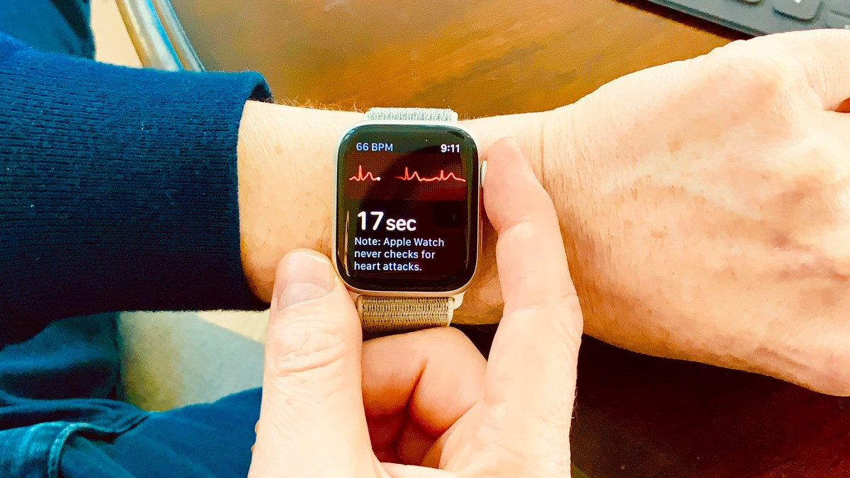 This small step for a gadget signals a giant leap for human health. #AppleWatch #mHealth #GameChanger
